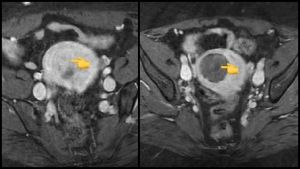 fibroid embolization pre and post