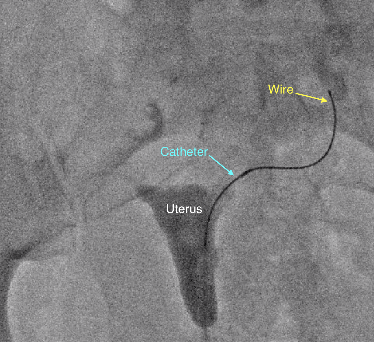 fallopian tube recanalization