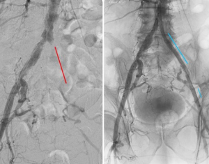 ilac stent pvd claudication