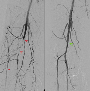 pvd tibial disease occlusions