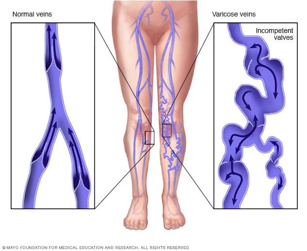 Varicose Veins Atabak Allaei Md Vascular Image Guided