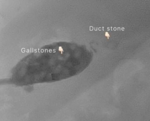 gallstone removal endoscopic california los Angeles san diego